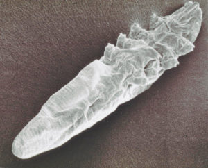 ácaro de demodex